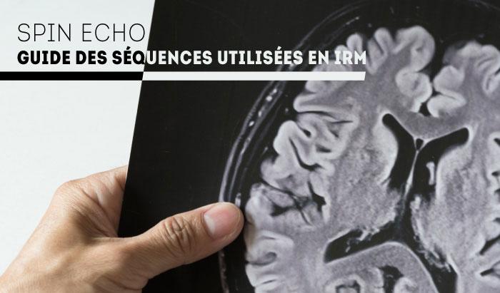 Echo de spin : Guide de séquence IRM