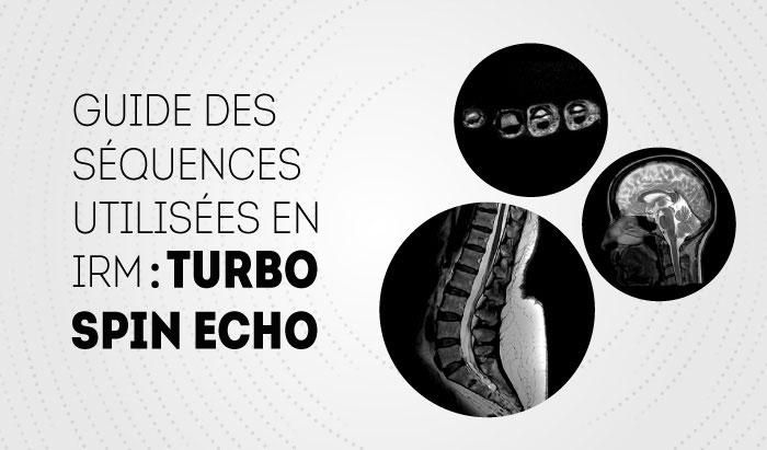Fast Spin Echo : Guide de séquence en IRM
