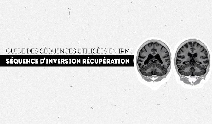 Inversion-Récupération: Guide de séquence en IRM
